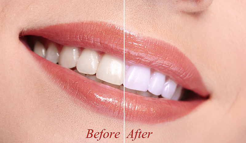 Teeth Whitening Before After in Moncton NB
